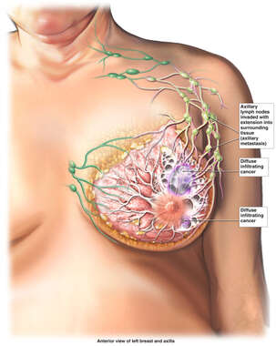Invasive Breast Cancer Progression