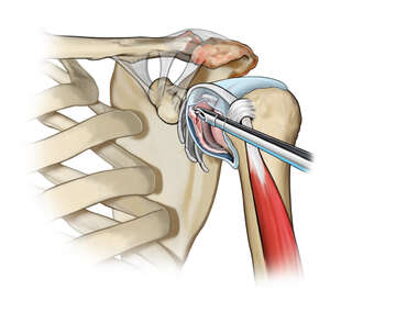 Synovectomy and Labral Tear Debridement