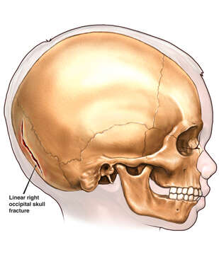 Child with Post-accident Occipital Skull Fracture