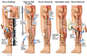 Tibial Fracture Fixation and Wound Debridement