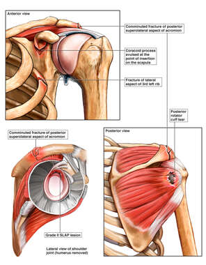 Left Shoulder Injuries