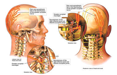 Male Head and Neck with Post-accident Facet Syndrome and Occipital Neuralgia