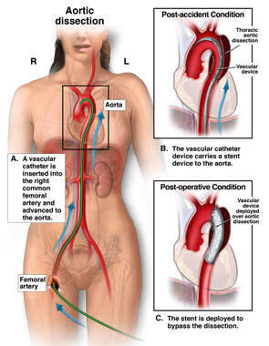 Aortic Dissection with Vascular Surgical Procedure