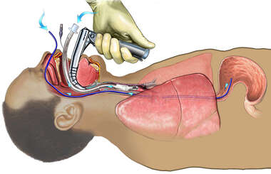 Endotracheal and Nasogastric Tube Insertion