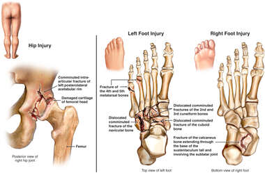Fractures to the Posterior Right Hip and Left Foot Bones