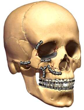 Skull Fractures with Fixation of Zygomatic Bones and Teeth