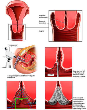 Treatments for Cervical Cancer and Subsequent Scarring