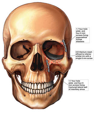 Post-operative Condition of the Skull with Orbital and Plate Fixation