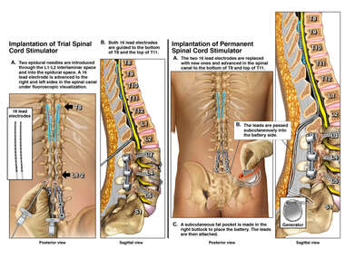 Spinal Cord Stimulator Placement