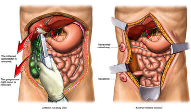 Gangrene of the Colon and Surgical Excision