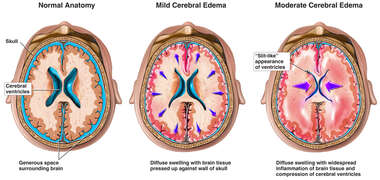 Progression of Brain Swelling
