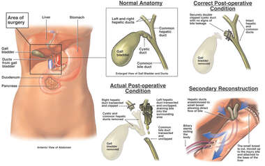 Cholecystectomy with Bile Leak and Surgical Reconstruction