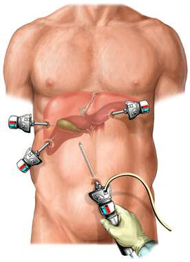 Laparoscopic Cholecystectomy Orientation