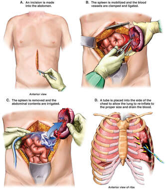 Abdominal and Thoracic Repairs