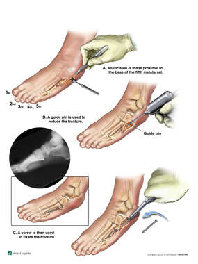 Surgical Fixation of Left 5th Metatarsal
