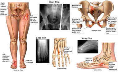 Female Lower Extremities with Pelvic and Foot Fractures