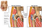 Trochanteric (Hip) Bursitis