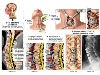Cervical Diskectomies And Fusions