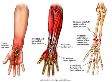 Post-accident Arm and Hand Injuries