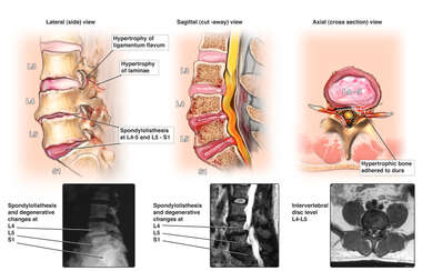 Pre-operative Condition of the Lumbo-sacral Spine