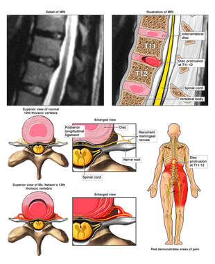 Thoracic Disc Injury with Resulting Back Pain