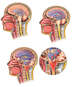 Progression of Hydrocephalus with Eventual Herniation of the Brain Stem