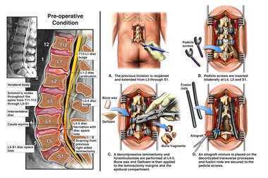 Discogenic Disease and Spinal Stenosis with Surgical Decompression and Fusion