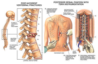 Post-accident T10 Spinal Fracture with Multilevel Posterior Stabilization and Fusion