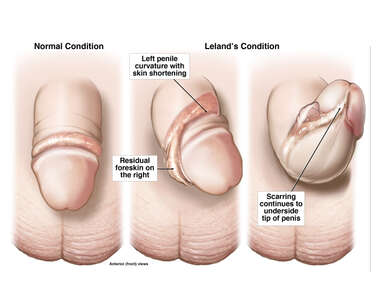 Penile Curvature Deformity Following Circumcision