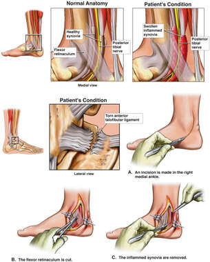 Torn Ankle Ligament and Synovitis