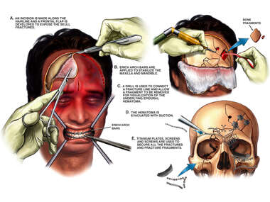 Male with Full Face Flap Exposure and Surgical Repair of Post-accident Head Injuries