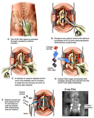 Additional Lumbar Surgery