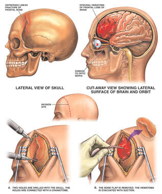 Post-accident Head Injury with Subsequent Craniotomy Procedure