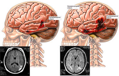 Side by Side Images and Films Revealing Developing Brain Injuries Over Time