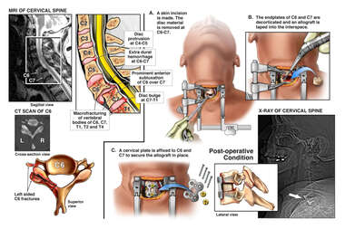 Cervical Spine Fracture with Anterior Cervical Fusion Procedure
