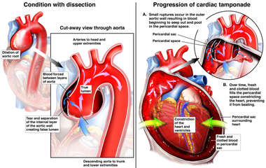 Progression of Cardiac Tamponnade