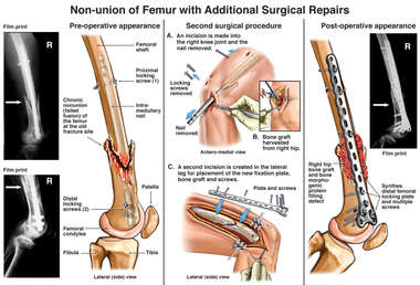 Non-union of Femur with Additional Surgical Repairs