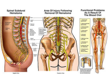 Lumbar Spinal Injury with Subsequent Symptoms