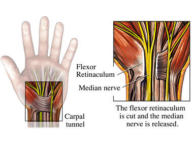 Open Release Surgery of the Median Nerve