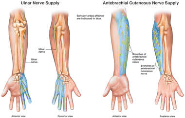Cutaneous Nerve Supply to the Right Arm, Wrist and Hand
