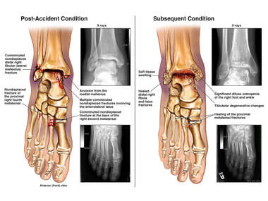 Right Foot and Ankle Fractures