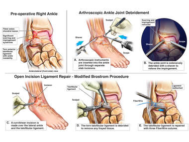 Right Ankle Injuries with Surgical Fusion