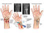 Right Wrist Fractures with Surgical Fixation