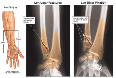 Left Ulnar Fracture and Fixation