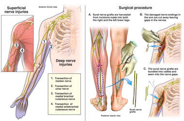 Multiple Nerve Injuries with Surgical Reconstruction