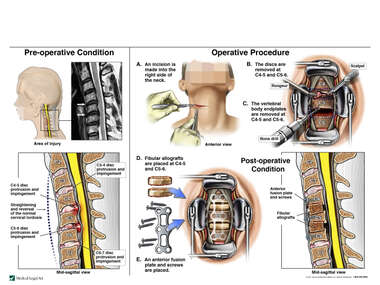 Cervical Spine Injuries with Double Level Anterior Cervical Discectomy and Anterior Fusion Procedure