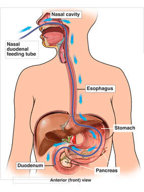 Placement of Nasal-Duodenal Feeding Tube