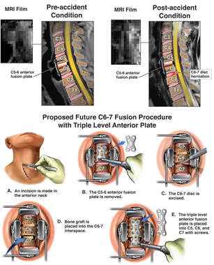 Cervical Discectomy and Fusion