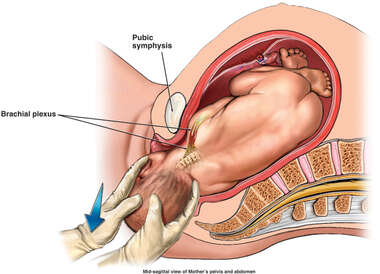 Mechanism of Shoulder Dystocia