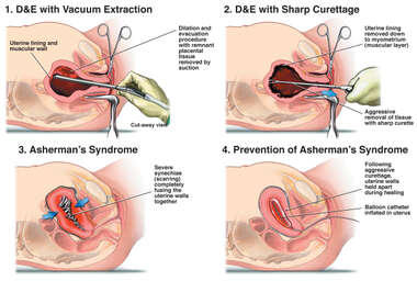 Remove Retained Placenta with Subsquent Asherman's Syndrome